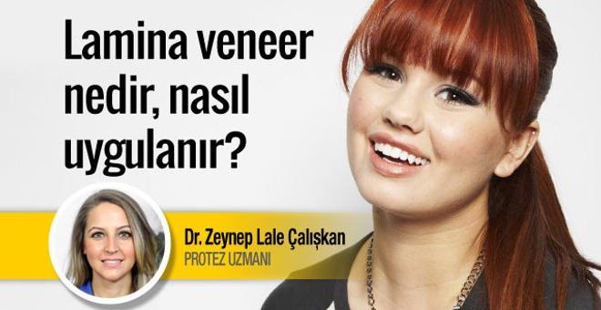 Lamina veneer nedir tedavisi dişlere nasıl uygulanır?