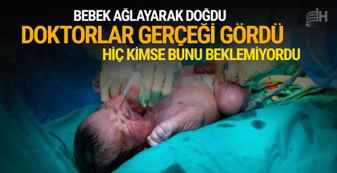 Bebek ağlayarak dünyaya geldi doktorlar gerçeği görünce şoke oldu