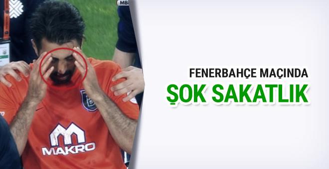 Fenerbahçe maçında burnu kırıldı