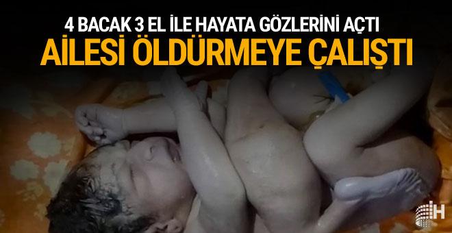 Bebek bu halde doğdu ailesi onu korkunç şekilde öldürmek istedi