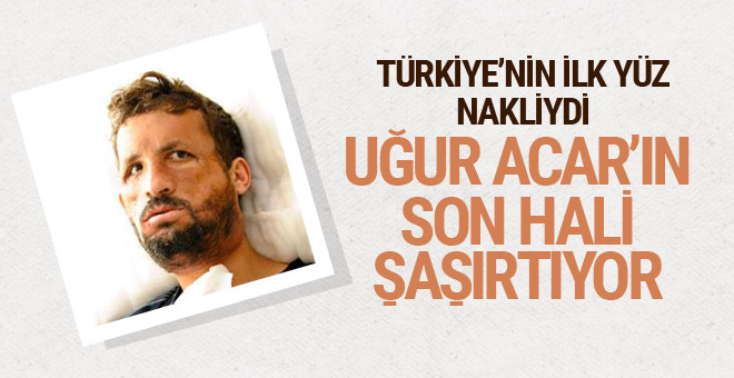 Türkiye'nin ilk yüz nakliydi! Uğur Acar'ın son hali görenleri şaşkına çevirdi