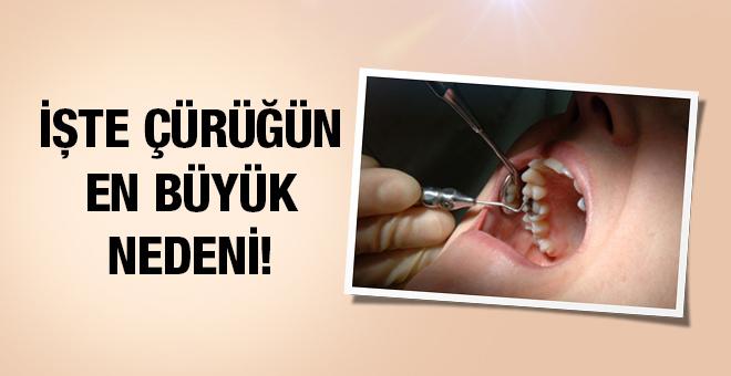 Diş çürüğü nedir nasıl oluşur? Çürük için bunları yapın!