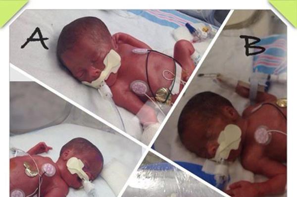 42 yaşında üçüz bebek bekliyordu ama doğumda öyle bir sürpriz yaşadı ki...