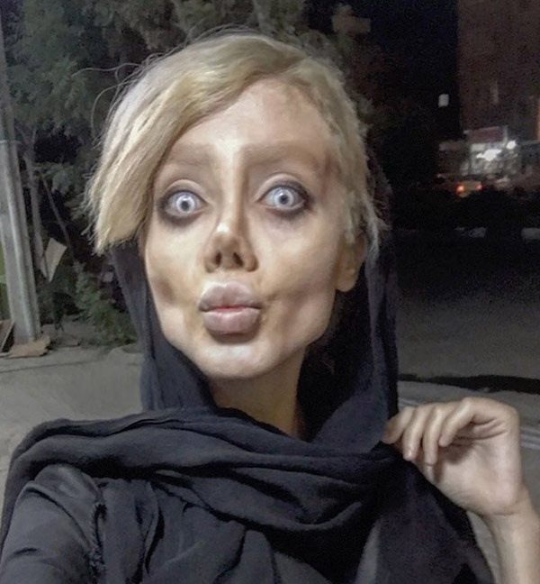 Angelina Jolie'ye benzemek istedi! Sonuç korkunç