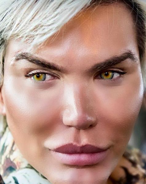 Amacı Barbie bebeğe benzemekti ama yüzü haşlandı son hali şok