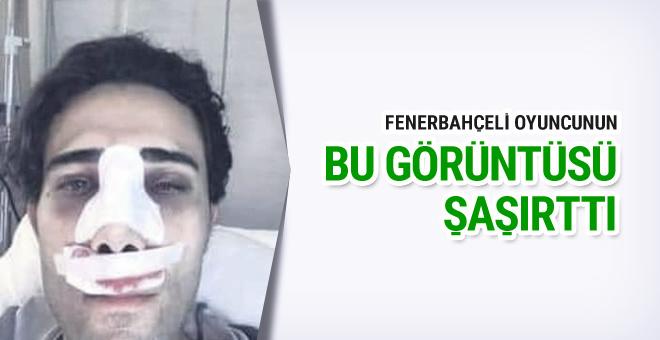 Fenerbahçeli futbolcunun bu hali şaşırttı