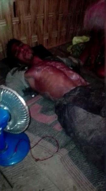 Arakan'da neler oluyor? Binlerce müslüman katlediliyor!