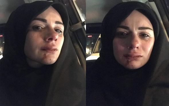 Sosyal Medya Fenomeni Elif Kübra Genç, Darp Edildi ile ilgili görsel sonucu