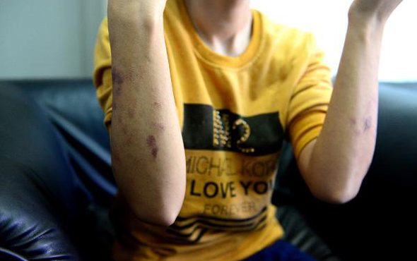 Lazer epilasyon faciası ! Genç kızı resmen yaktılar