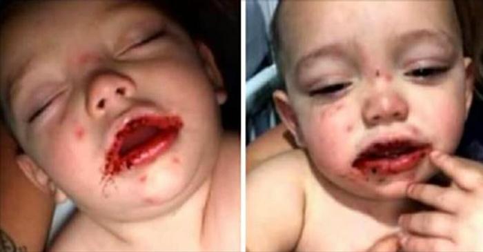 Çocuğunu bir anda bu halde buldu hastaneye koştu gerçekler acı!