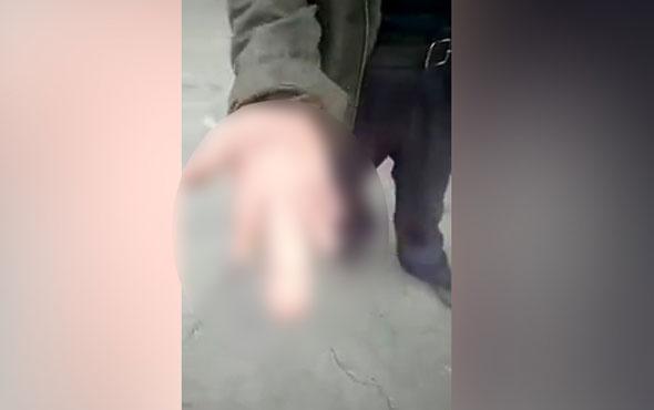 Penis parmaklı adamı görenler şoke oluyor!