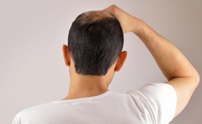 Saçımız neden dökülür? İşte önemli 8 nedeni