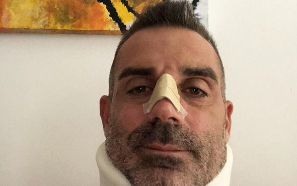 Chievo kalecisi Sorrentino'nun burnu kırıldı