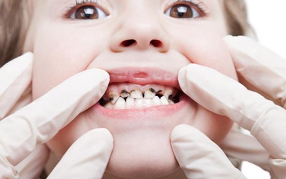 Çocuklarda diş çürüğünün sebebi nedir?