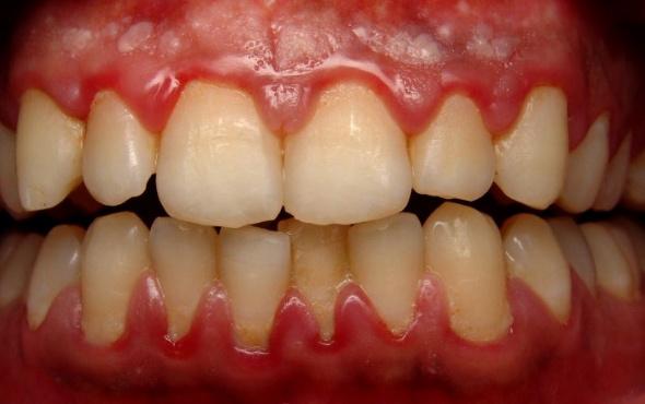 Diş eti iltihabına ne iyi gelir?