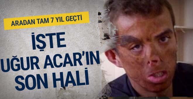 7 yıl geçti! Türkiye'nin ilk yüz nakli olan Uğur Acar'ın son haline bakın