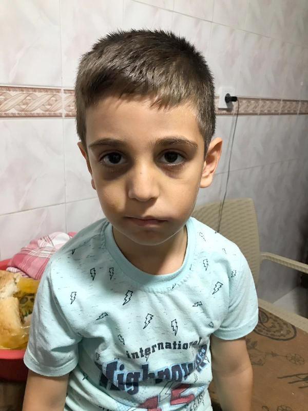 Babasının dövdüğü Mertcan hayatını kaybetti