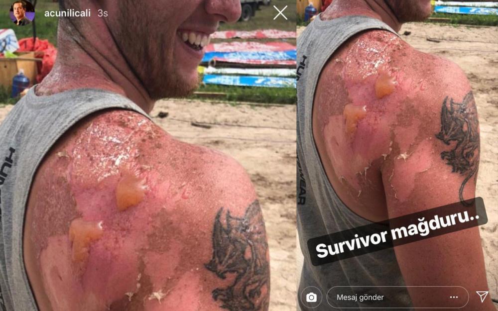 Acun Ilıcalı Hakan Kanık'ın Survivor'daki korkutan görüntüsünü paylaştı