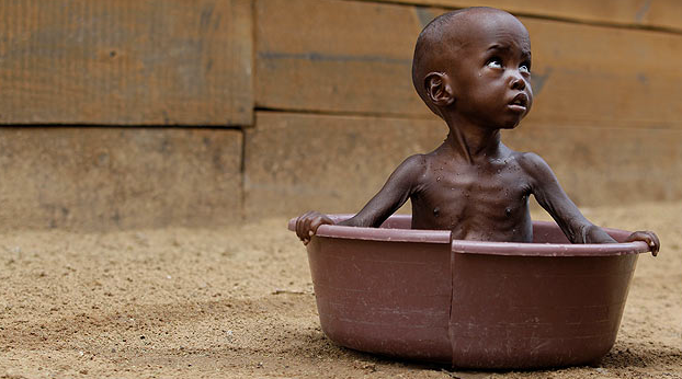 Somali'de çocuklar açlıktan ölüyor