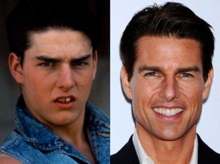 ünlüleri dişleri ile ilgili görsel sonucu