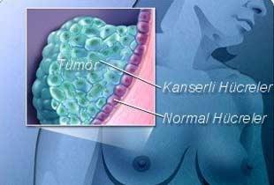 Kanser hastalığı genetik mi?