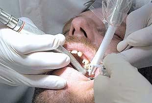 Özelde diş tedavisi yapılabilecek