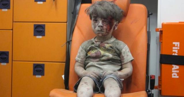 Halep'te enkazdan çıkarılan 5 yaşındaki ümran'a ne oldu