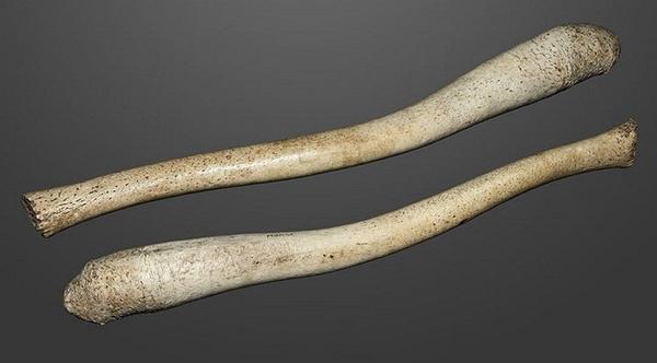 İnsanların penis kemiği ortaya çıktı dünyada bir ilk İngilizler buldu - Sayfa 7