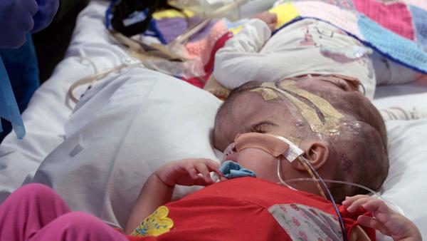 Dünya bu ameliyatı konuşuyor 100 doktor girdi 50 saatte yapışık ikizler birbirinden ayrıldı - Sayfa 7