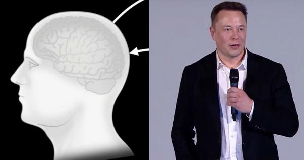 Efsane proje tanıtıldı Elon Musk insan beynini bilgisayara bağlayarak tarihe geçecek - Sayfa 7
