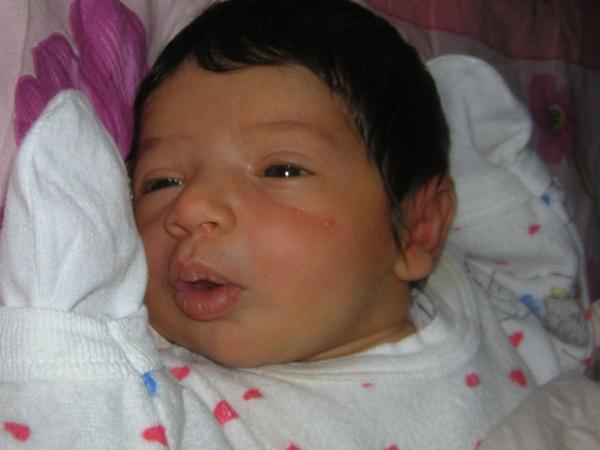 Uzmanı açıkladı! İşte yenidoğan bebeklerde en sık görülen cilt hastalıkları - Sayfa 10