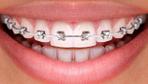 Diş telinin dudaklara bir zararı var mıdır?