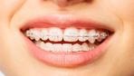 Diş teli neden takılır ne kadar süreyle dişte kalır?