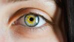 Göz kuruluğunun belirtileri ve tehlikeleri