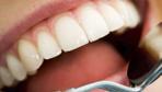 Diş sararmalarını önleyen Block Out yöntemi nedir?