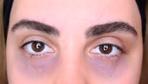 Göz altı morlukları nasıl geçer işte tek seanslık tedavisi