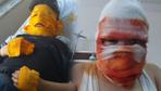 Sprey boya kutusu yüzünde patlamıştı işte 11 yaşındaki çocuğun son hali