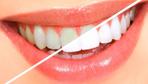 Sararan dişler nasıl beyazlar işte ilk olarak yapmanız gerekenler
