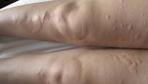 Ayakta kırmızı lekeler neden olur hastalık belirtisi mi?