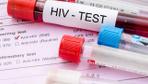 Rusya'da 2018'de 20 bin kişi HIV pozitif nedeniyle hayatını kaybetti