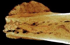 İnsanlık tarihindeki en eski kanser vakası