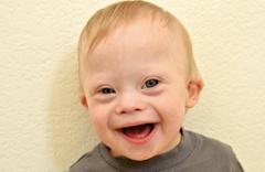 Down Sendromu nedir belirtileri ve kromozom farkı nasıl anlaşılır?