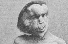 Fil Adam Joseph Merrick'in mezarının bulunduğu iddia edildi
