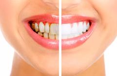 Diş taşı neden oluşur zararlı mı? Diş taşı temizlenmezse diş kaybı olur