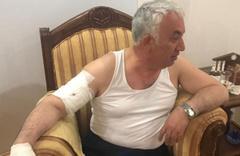 Belediye Başkanına korkunç köpek saldırısı kolunu parçaladı