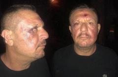 Denizlispor Başkanı Ali Çetin 'polis şiddetine maruz kaldım' demişti! Valilikten yanıt geldi