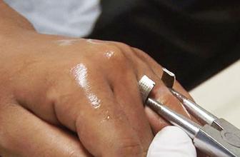 Parmağındaki yüzükten itfaiye kurttardı