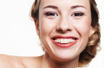 Kısa sürede diş teli tedavisi- Fastbraces