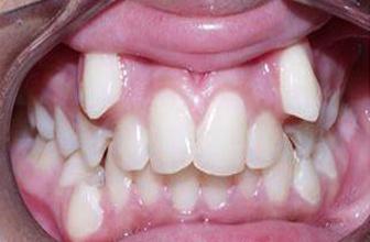Diş çapraşıklığı kısa sürede düzelir mi?