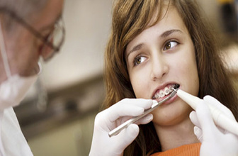 Fastbraces diş teli tekniği nedir?